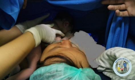 Inisiasi Menyusui Dini sejak dalam kamar operasi pada masa ibunya sedang dijahit